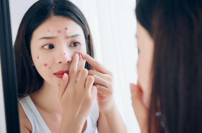 cara ini bisa menghilangkan jerawat pada wajah